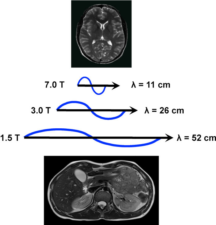 Dielectric effect - Questions and Answers in MRI