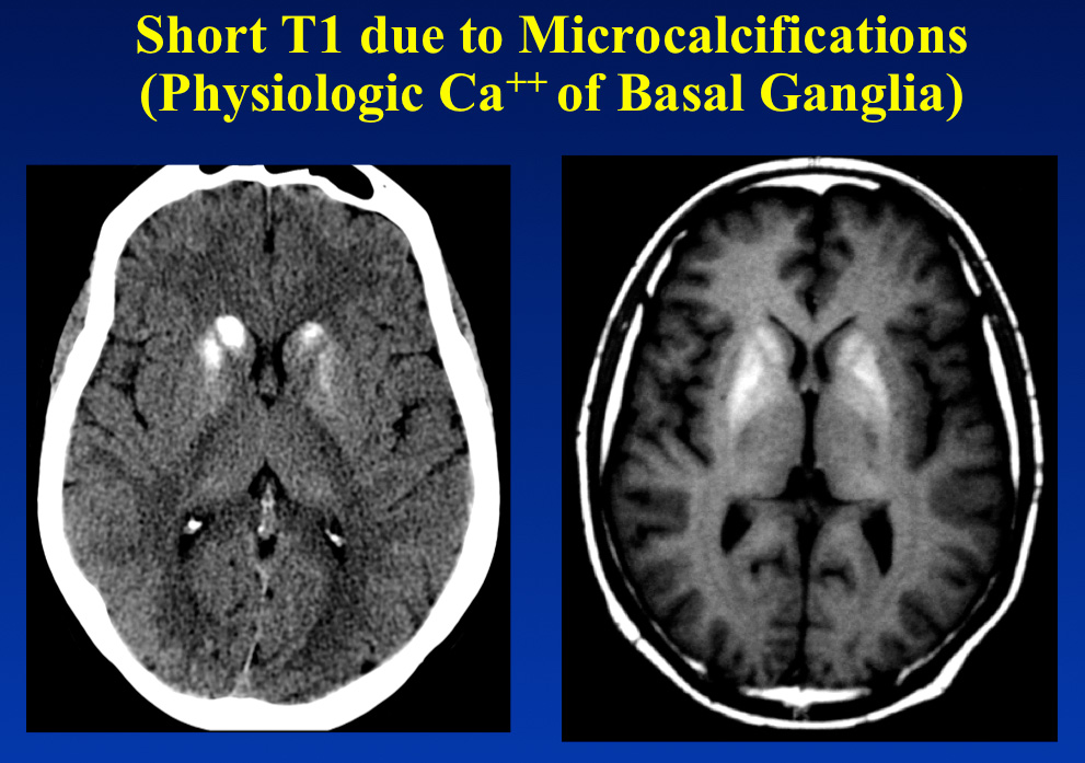 Short T1 calcification - Questions and Answers in MRI