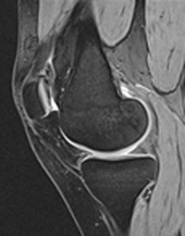 Dual-echo steady state (DESS) image knee