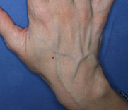 are veins really blue